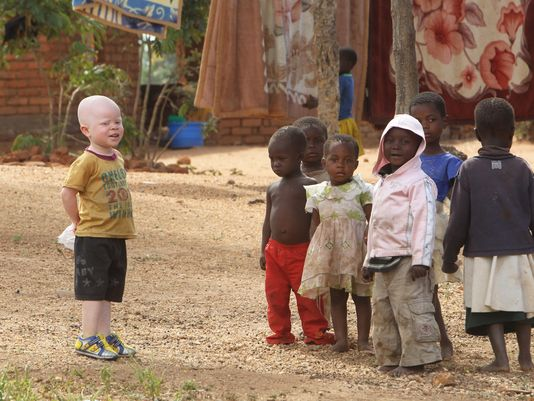 636008969462198422-AP-Malawi-Albinos-Hunted